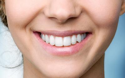 Hábitos sanos que pueden dañar tus dientes